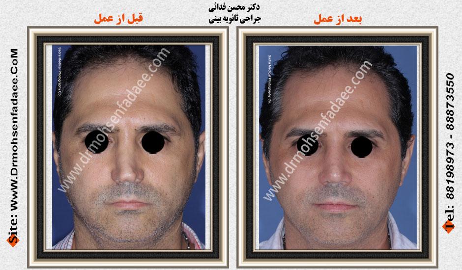 جراح بینی