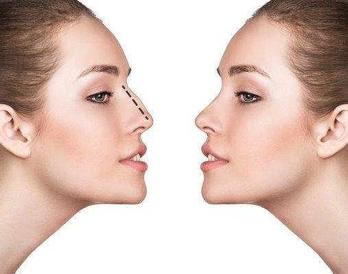 جراحی بینی و تغییر نگرش در جذابیت، موفقیت و سلامت