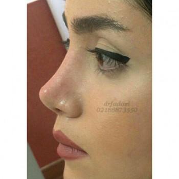 توصیه های قبل از جراحی بینی