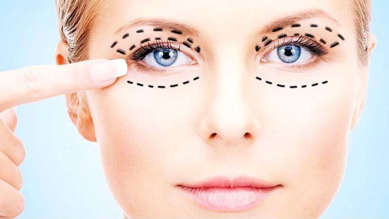 جراحی زیبایی چشم