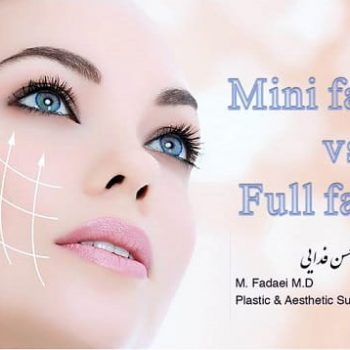 mini face lift vs. full face lift