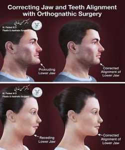 قبل و بعد جراحی اصلاح فک