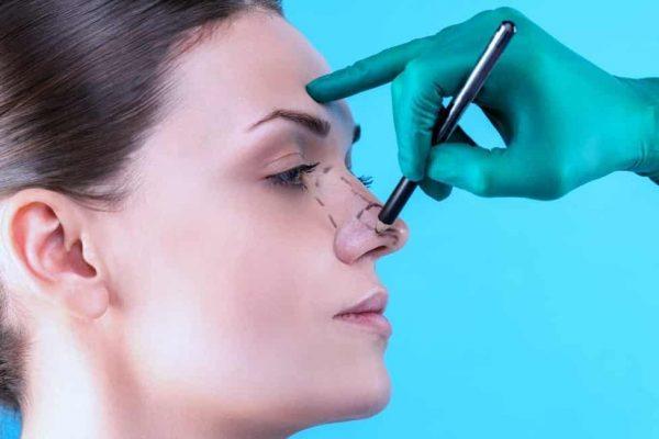 بهبود سریع بعد از عمل جراحی بینی