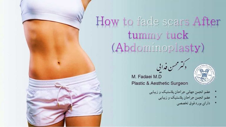(how to fade scars After tummy tuck (Abdominoplasty