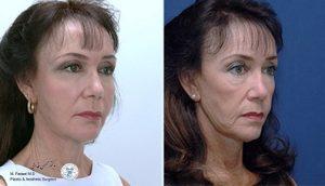 قبل و بعد از تزریق چربی به صورت