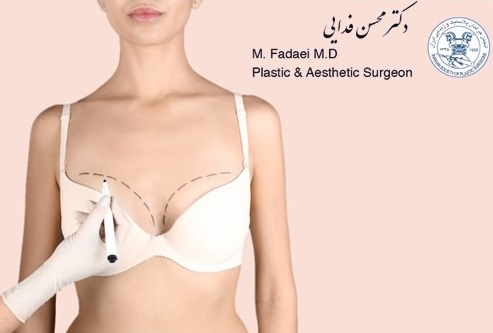 Things You Should Avoid after Breast Augmentation