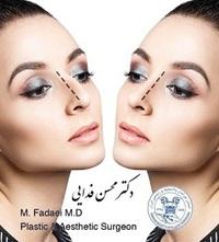 جراحی ریویژن بینی