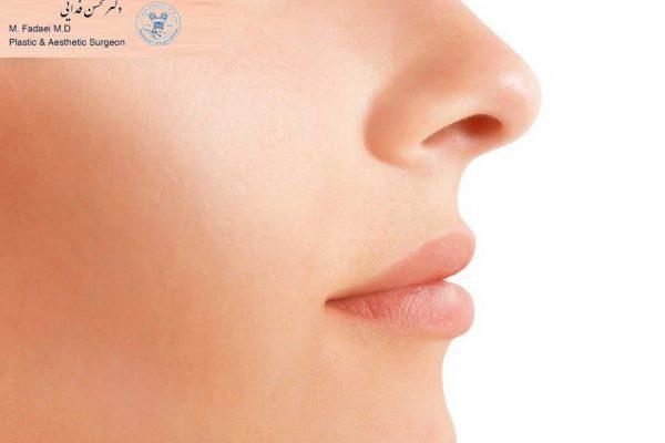 جراحی بینی استخوانی - الجراحة التجمیلیة أنف عظمي