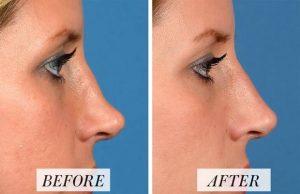 اصلاح عیوب بینی با تزریق فیلر - روش غیرجراحی رینوپلاستی بینی