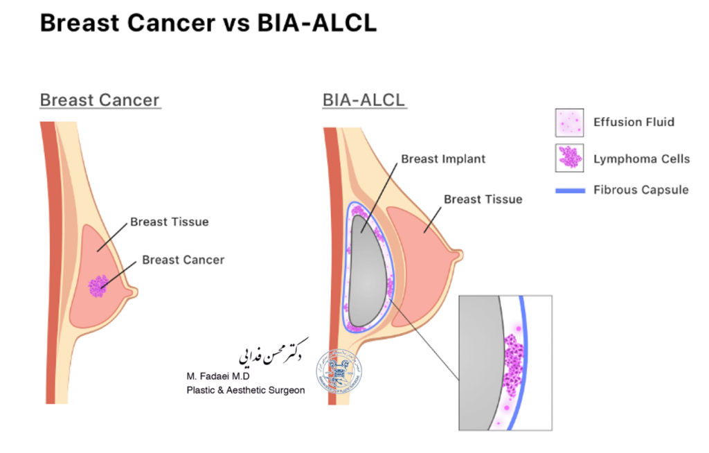 Breast Cancer vs BIA-ALCL