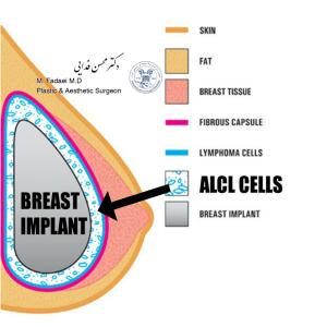 alcl cells