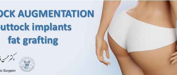 BUTTOCK AUGMENTATION : fat grafting and buttock implants