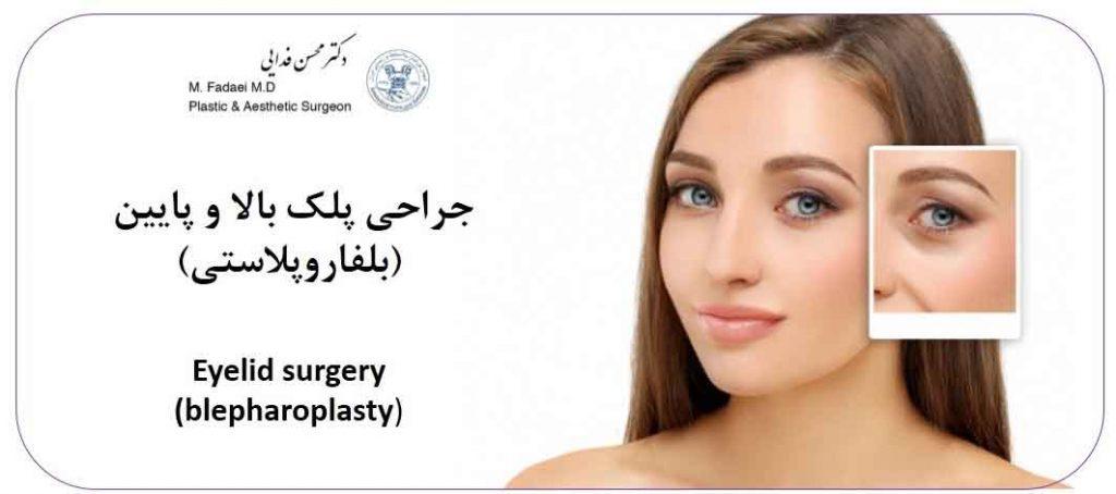 بلفاروپلاستی (عمل جراحی پلک)