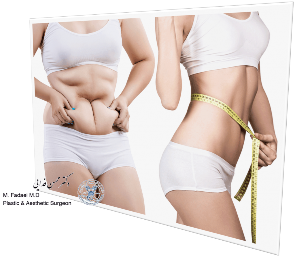 abdominoplasty or Liposuction