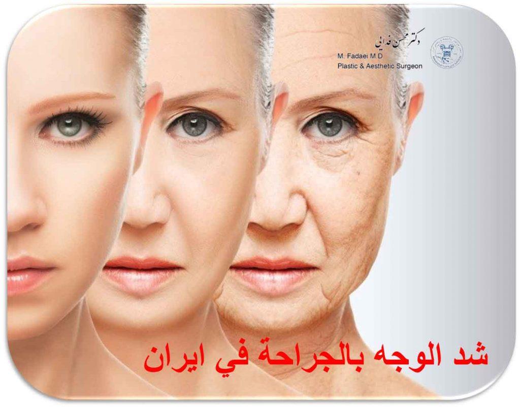 شد الوجه فی ایران