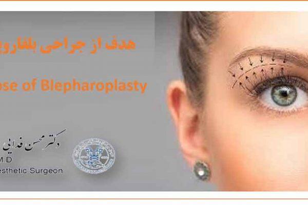 بلفاروپلاستی blepharoplasty