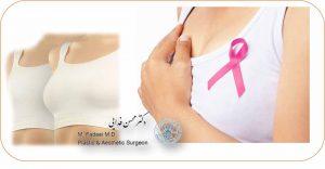 بازسازی سینه با تزریق چربی