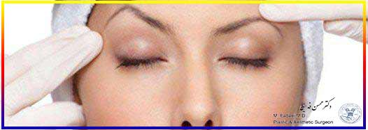 لیفت ابرو - Answers to questions about brow lift