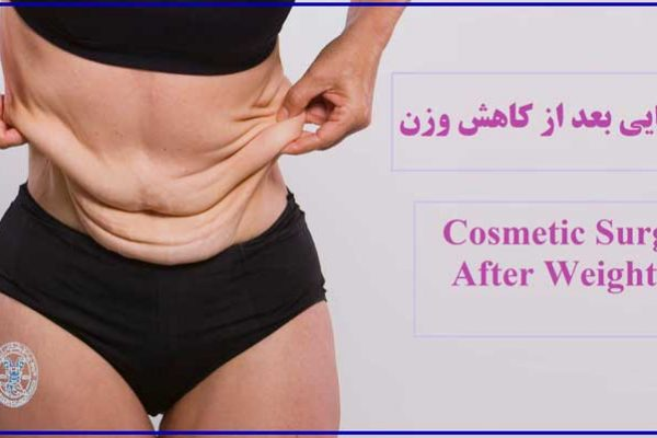 جراحی زیبایی بعد از کاهش وزن - Cosmetic surgery after weight loss