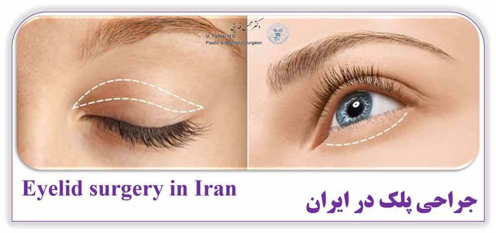 جراحی پلک در ایران - Eyelid surgery in Iran
