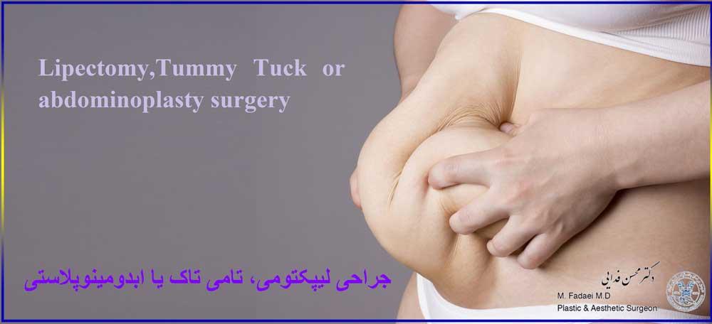 لیپکتومی ، تامی تاک ، ابدومینوپلاستی - Lipectomy , Tummy Tuck or abdominoplasty