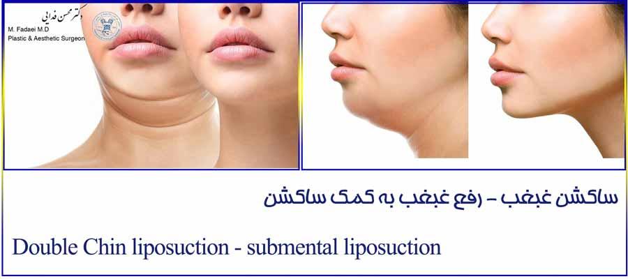 ساکشن غبغب - Double Chin suction