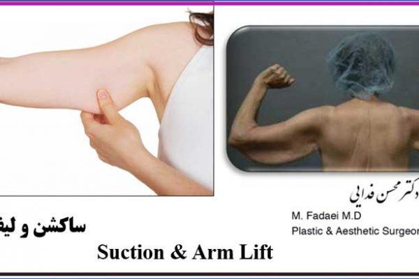 ساکشن و لیفت بازو - Suction and arm lift surgery