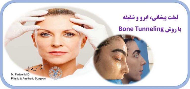 لیفت پیشانی و ابرو به روش bone tunneling
