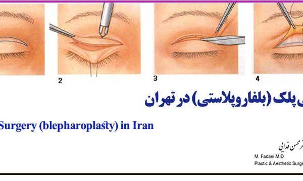 جراحی پلک (بلفاروپلاستی) - Eyelid Surgery (Blepharoplasty)
