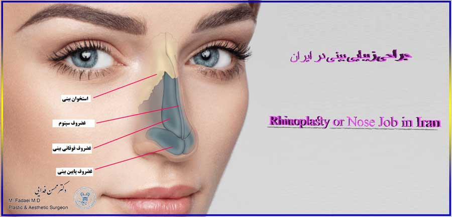 Everything about rhinoplasty in Iran