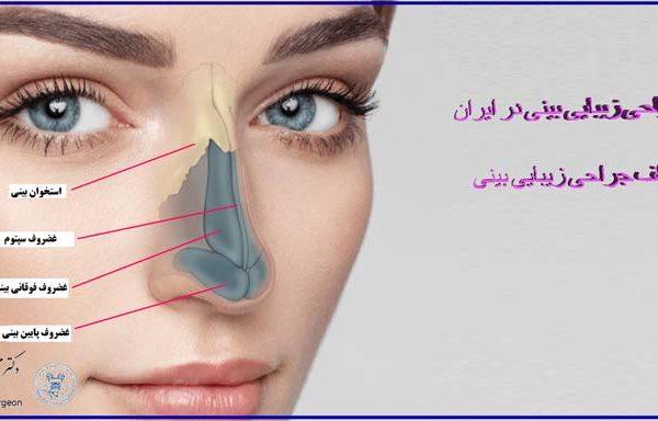 همه چیز درباره جراحی بینی در ایران