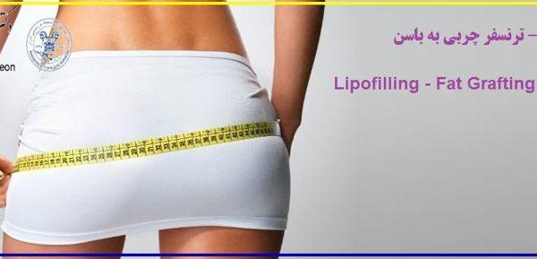لیپوفیلینگ - Lipofilling