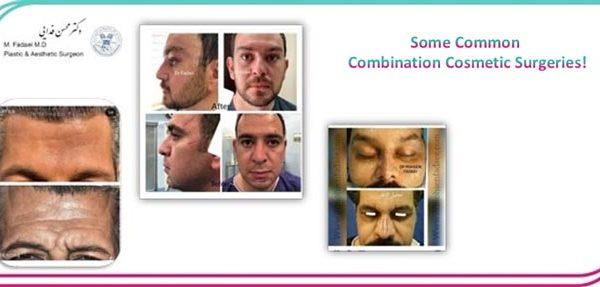Combination Cosmetic Surgeries